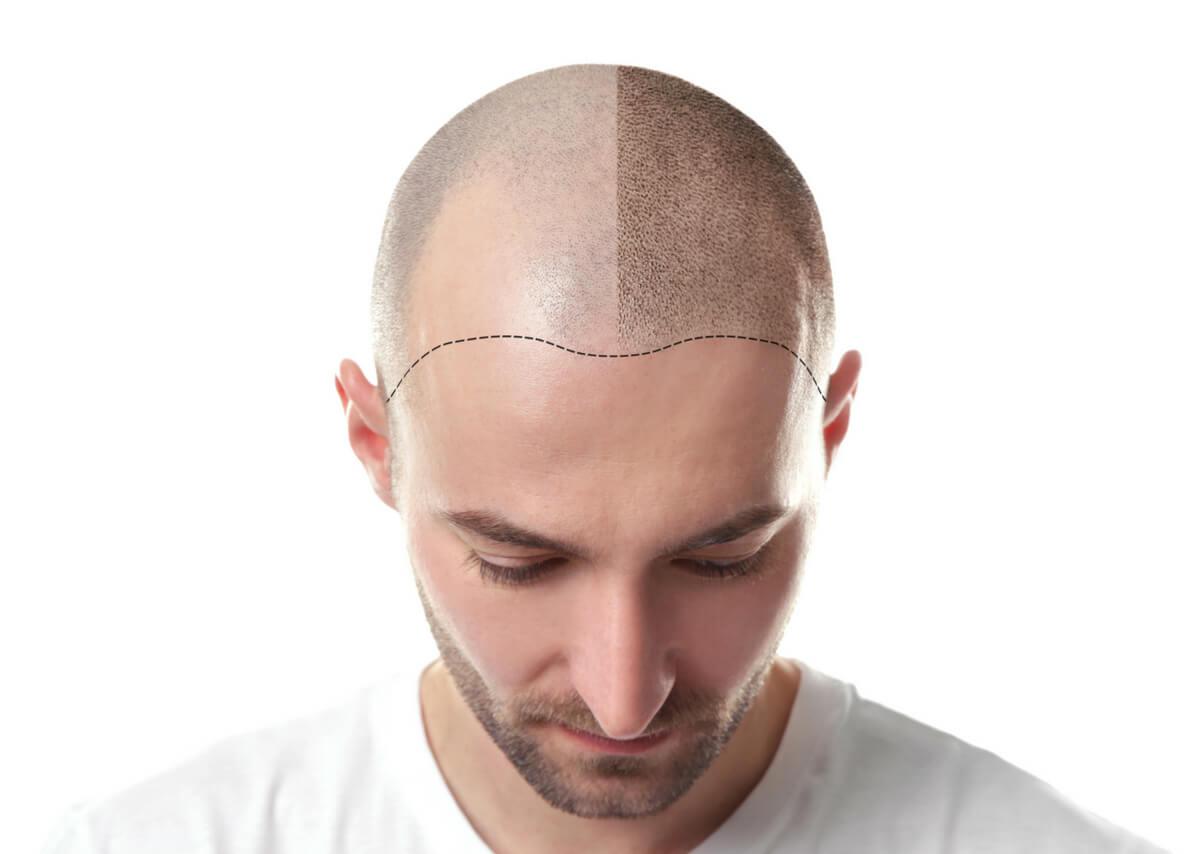 autotrapianto-capelli