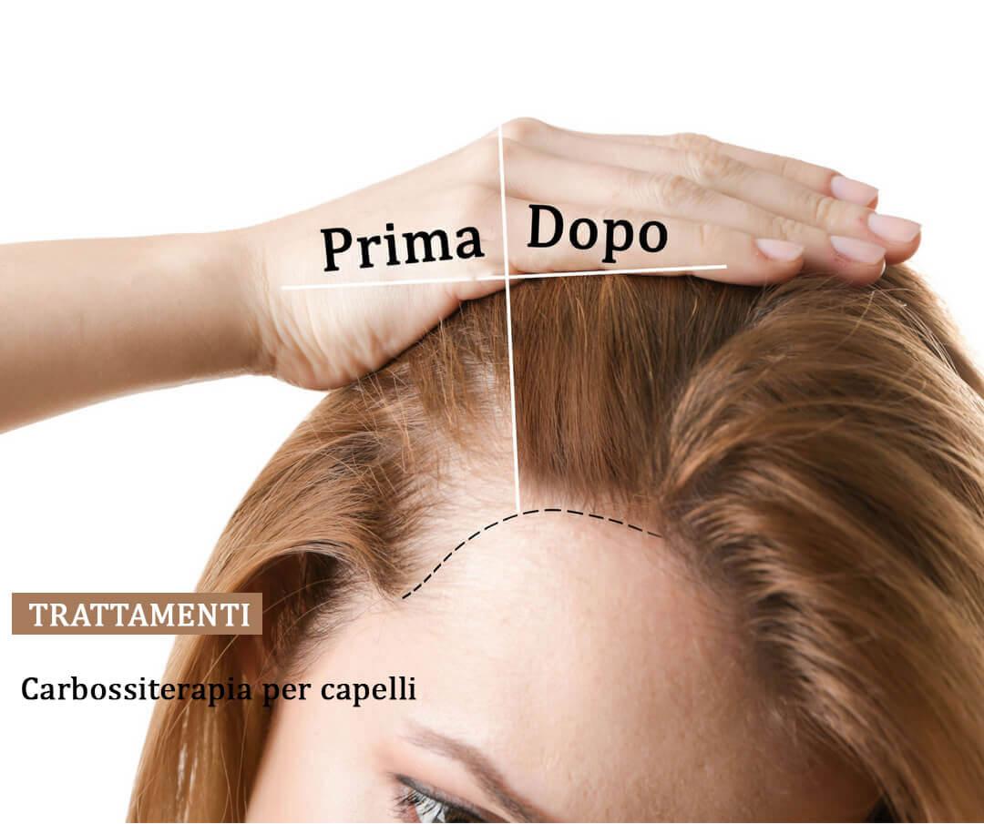 carbossiterapia-capelli