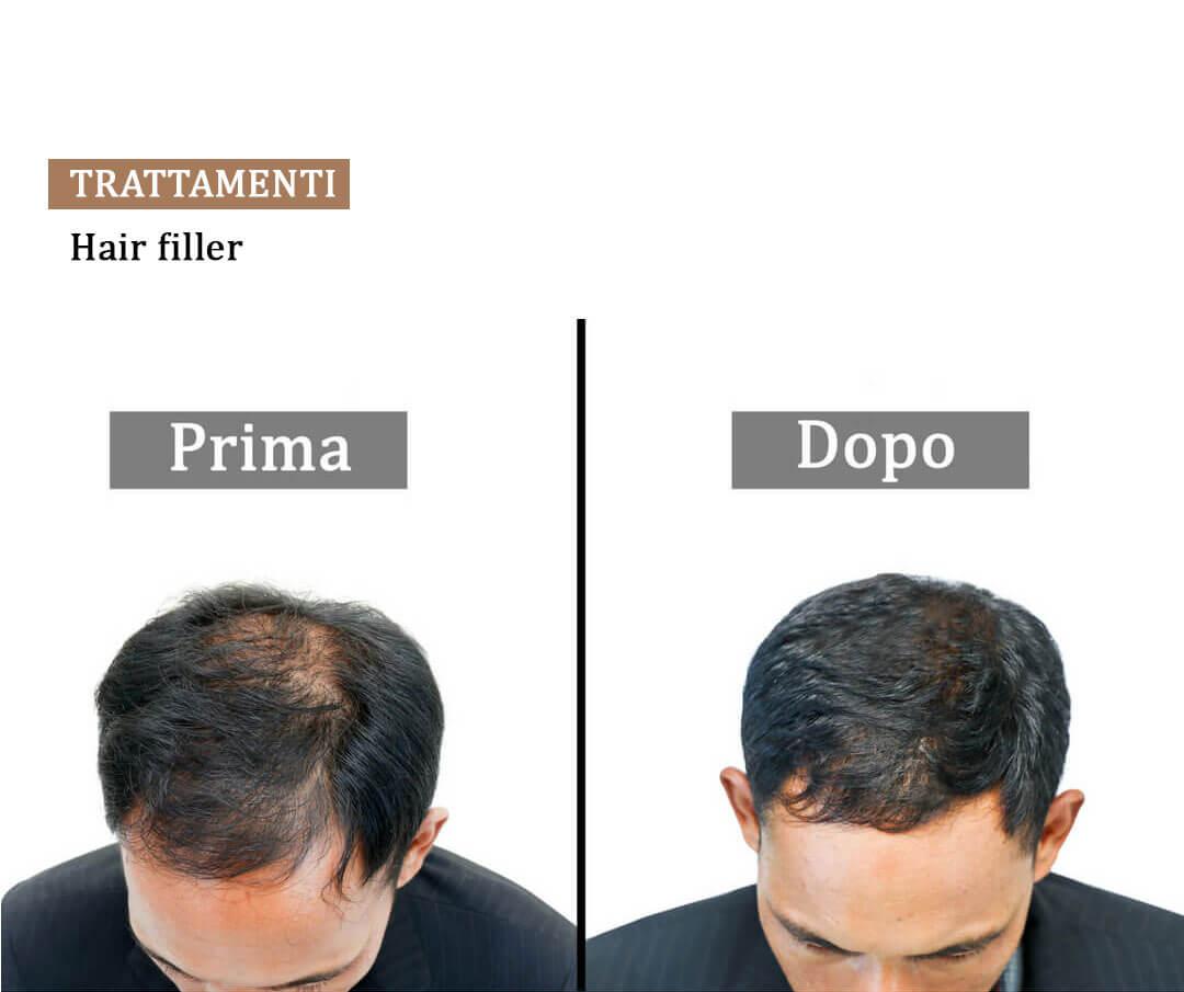 filler-capelli