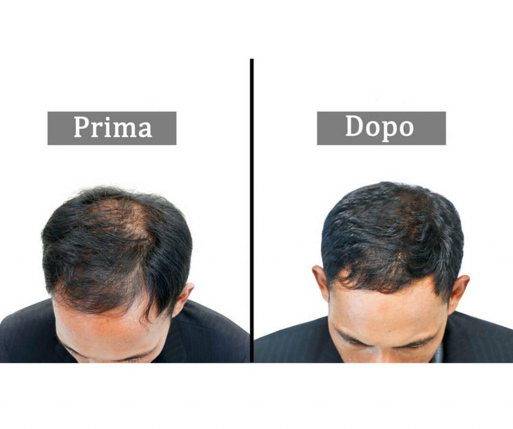 hair-filler-ialuronico