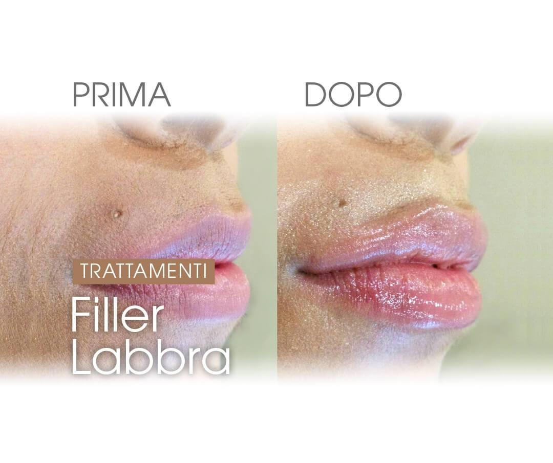Filler-labbra