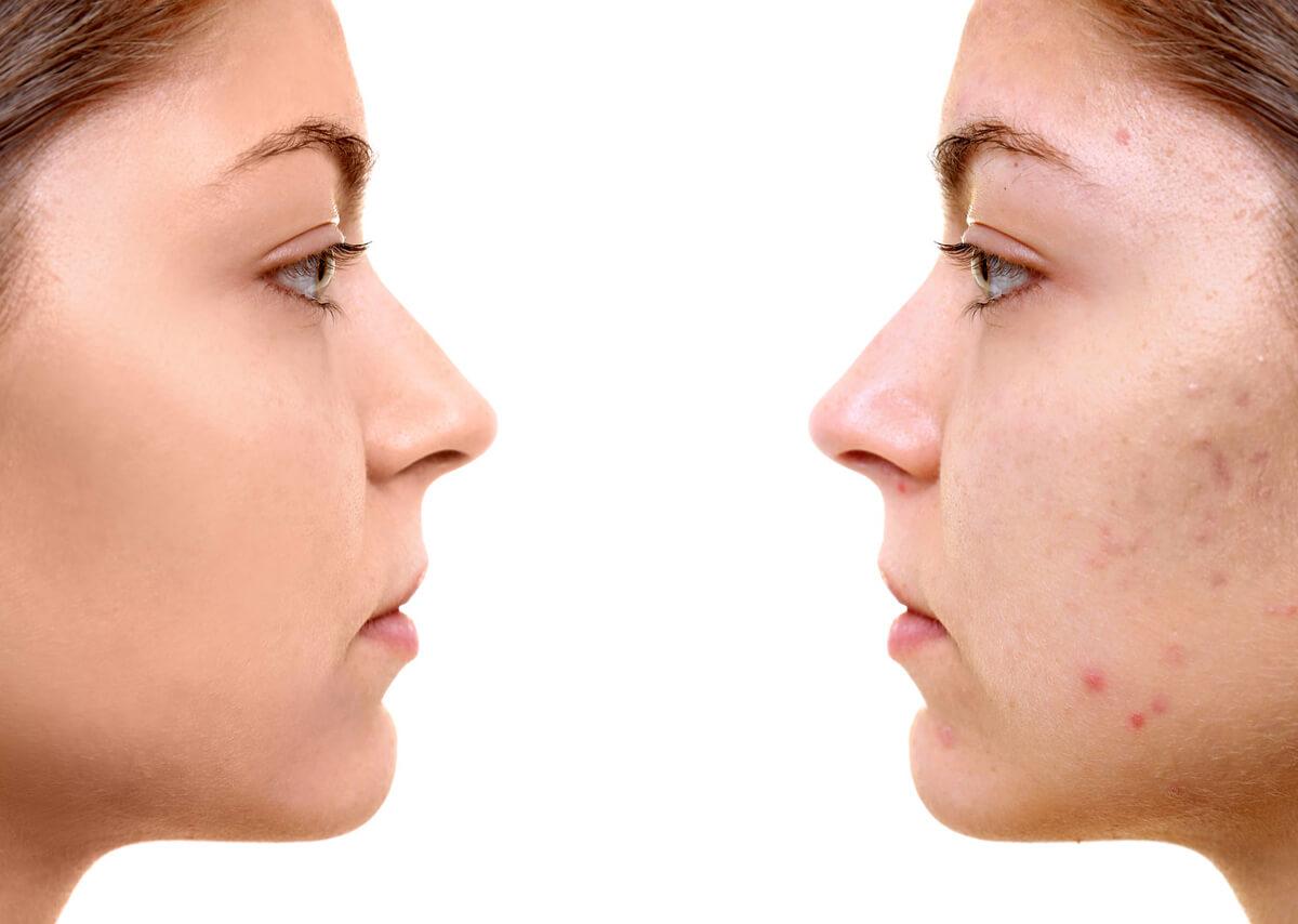 cicatrici-acne-plexer