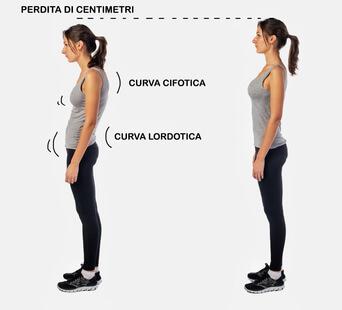 cifosi-lordosi-ginnastica -posturale
