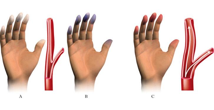 cosa succede alle mani con la sindrome di raynaud