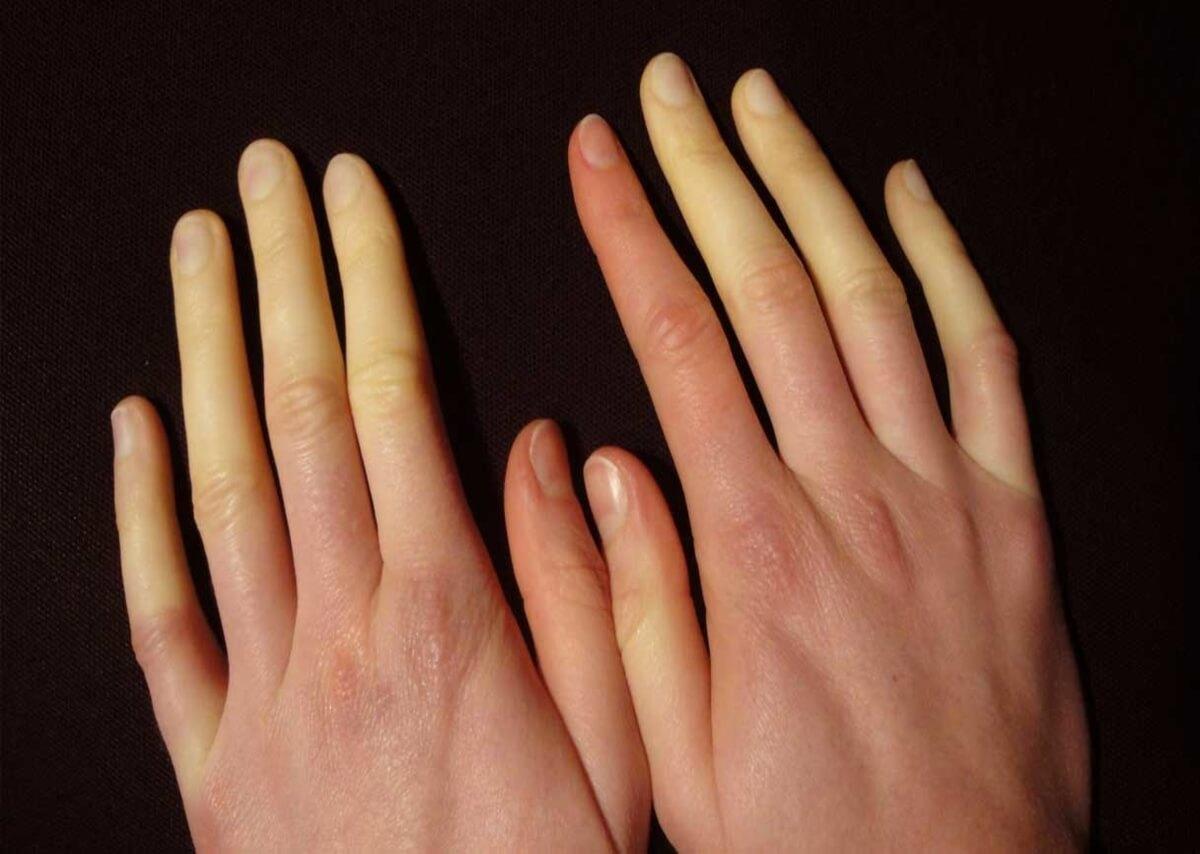 discolorazione dita a causa di mancato afflusso sangue