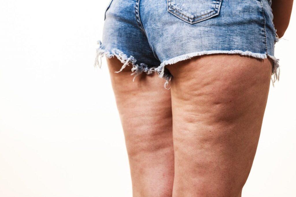 donna con cellulite avanzata e fibrosa