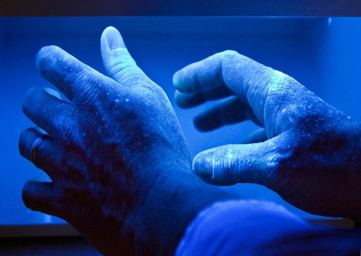 trattamento fototerapia mani psoriasi