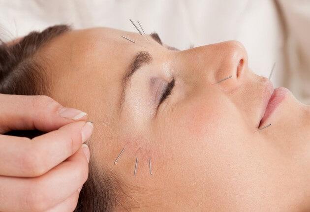 trattamento agopuntura estetica viso