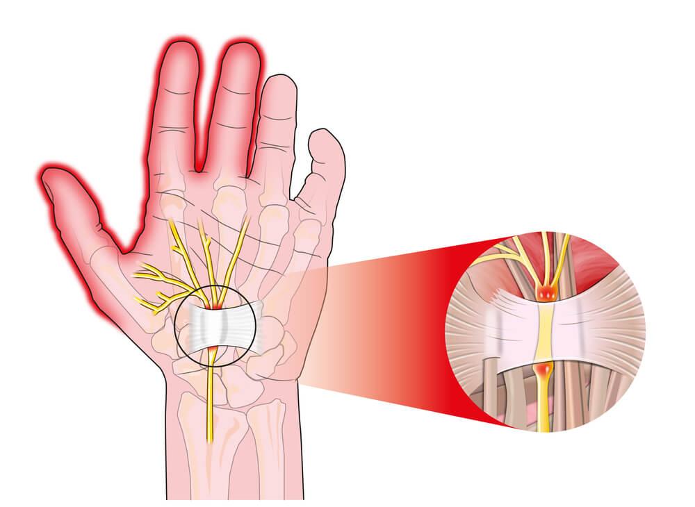 sintomi tunnel carpale formicolio